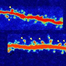 ketamine-synapse