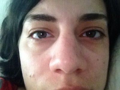 Treatments for removal of hereditary dark circles under ...