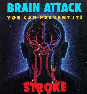 脳卒中のキケン