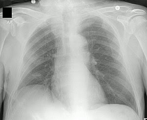 Chest X-ray showing tip of PICC line in the Su...