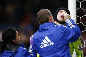 Чеху сломали нос в матче с Блэкберном