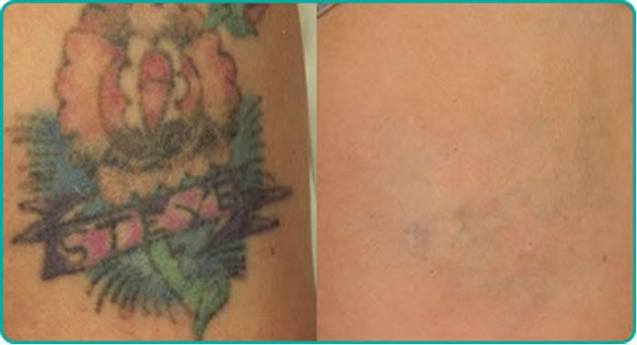 Eliminación De Tatuajes Medstetic Panamá