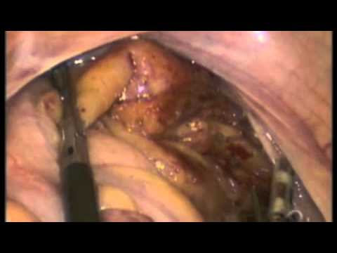 Single Incision Laparoscopic Whole Meso Rectal Excision of Rectal Carcinoma