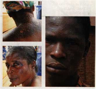 THIS SOUTH AFRICAN BROTHER AND SISTER ARE REGRETTING BLEACHING NOW!