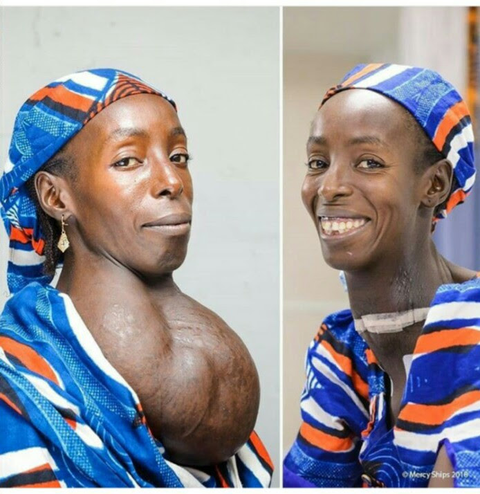 Woman With Massive Goiter For Over 18 Years All Smiles After Successful Surgery