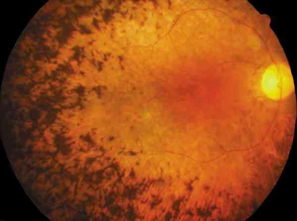 retinosis-pigmentaria