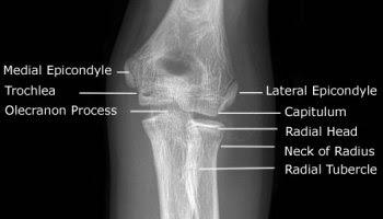 Pediatric Elbow Anatomy XRAY