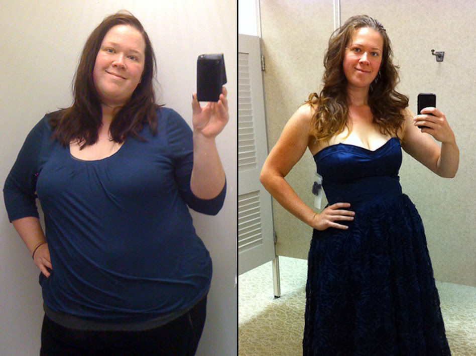 WEIGHT LOSS SURGERY SLEEVE BEFORE AND AFTER - burmes fede