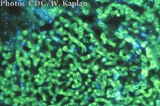 A photomicrograph of Aspergillus organisms