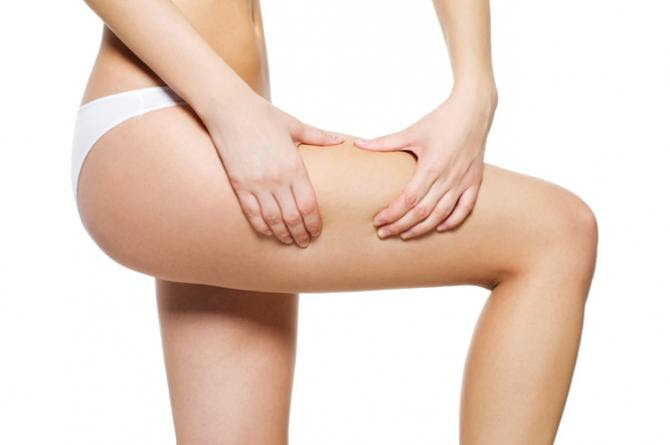 5 Common Reasons for Cellulite and 5 Steps to Stop it