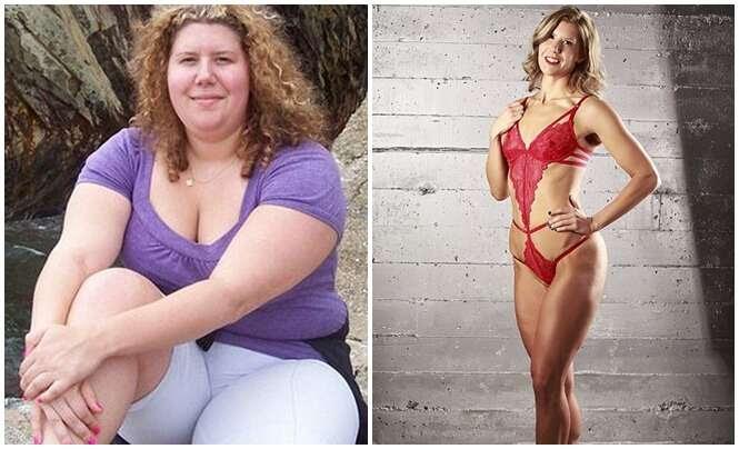 Obesa perde metade do peso sem passar por cirurgia