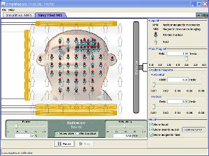 Simplified MRI