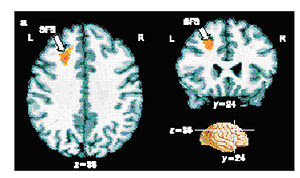 Results from an fMRI experiment in which peopl...