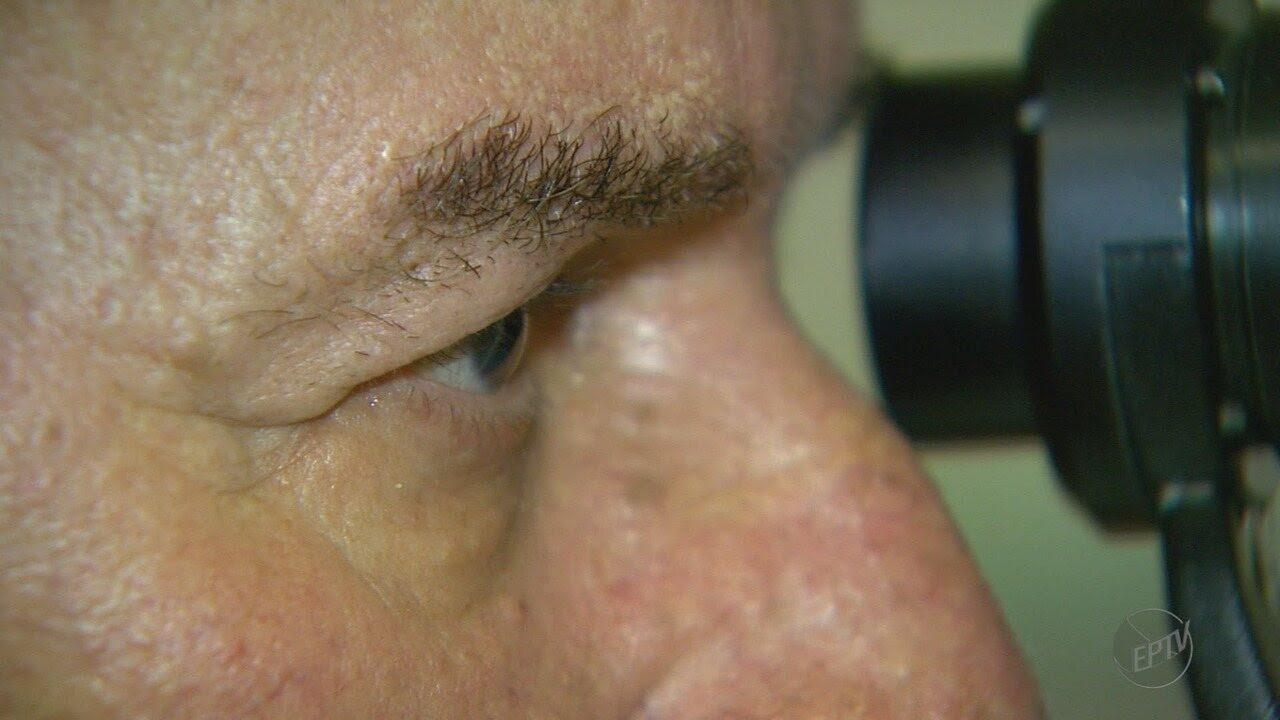Resultado de imagem para Pesquisadores da USP desenvolvem tratamento para doença que pode levar à perda da visão