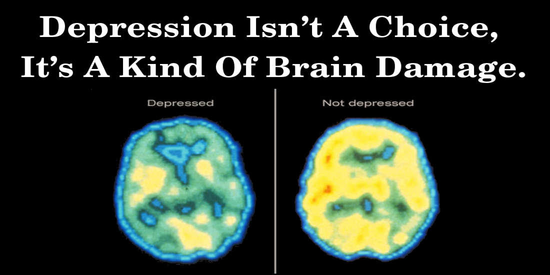 Depression Isn't A Choice, It's A Kind Of Brain Damage ...