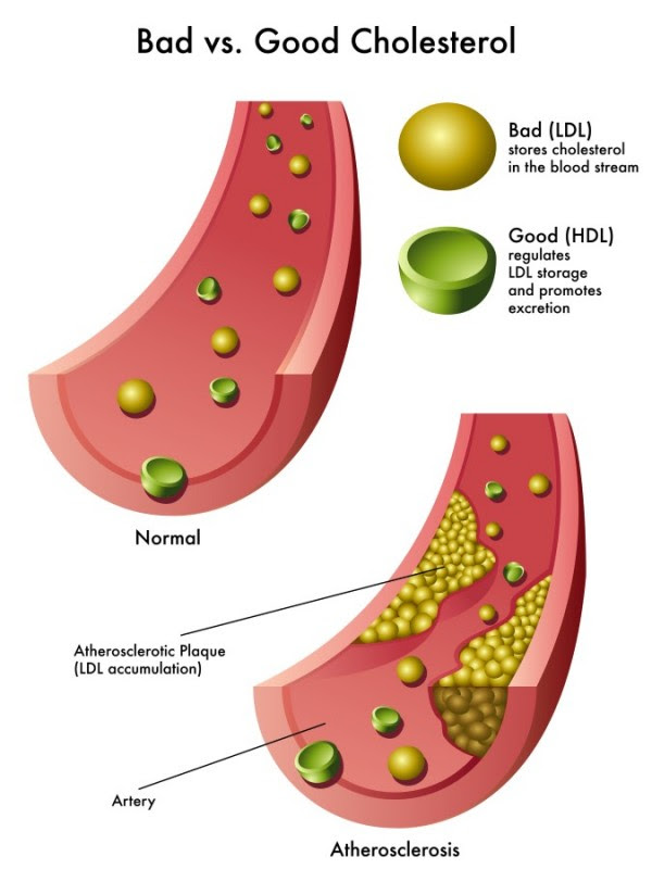 Can Cottonseed Oil Help Lower Your 'Bad' Cholesterol?