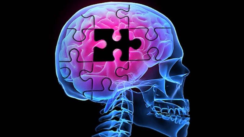 Eye Scan May Detect Early Alzheimer's Disease