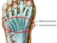 Bottom Foot Pain Diagram