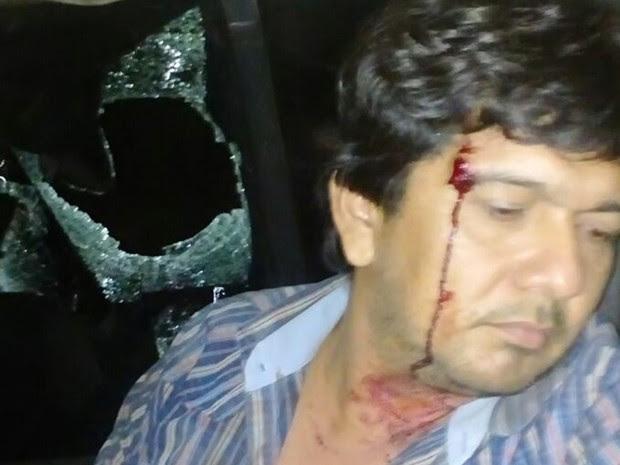 Fiscal foi ferido por estilhaços de vidro na cabeça (Foto: Polícia Civil de óbidos/Divulgação)