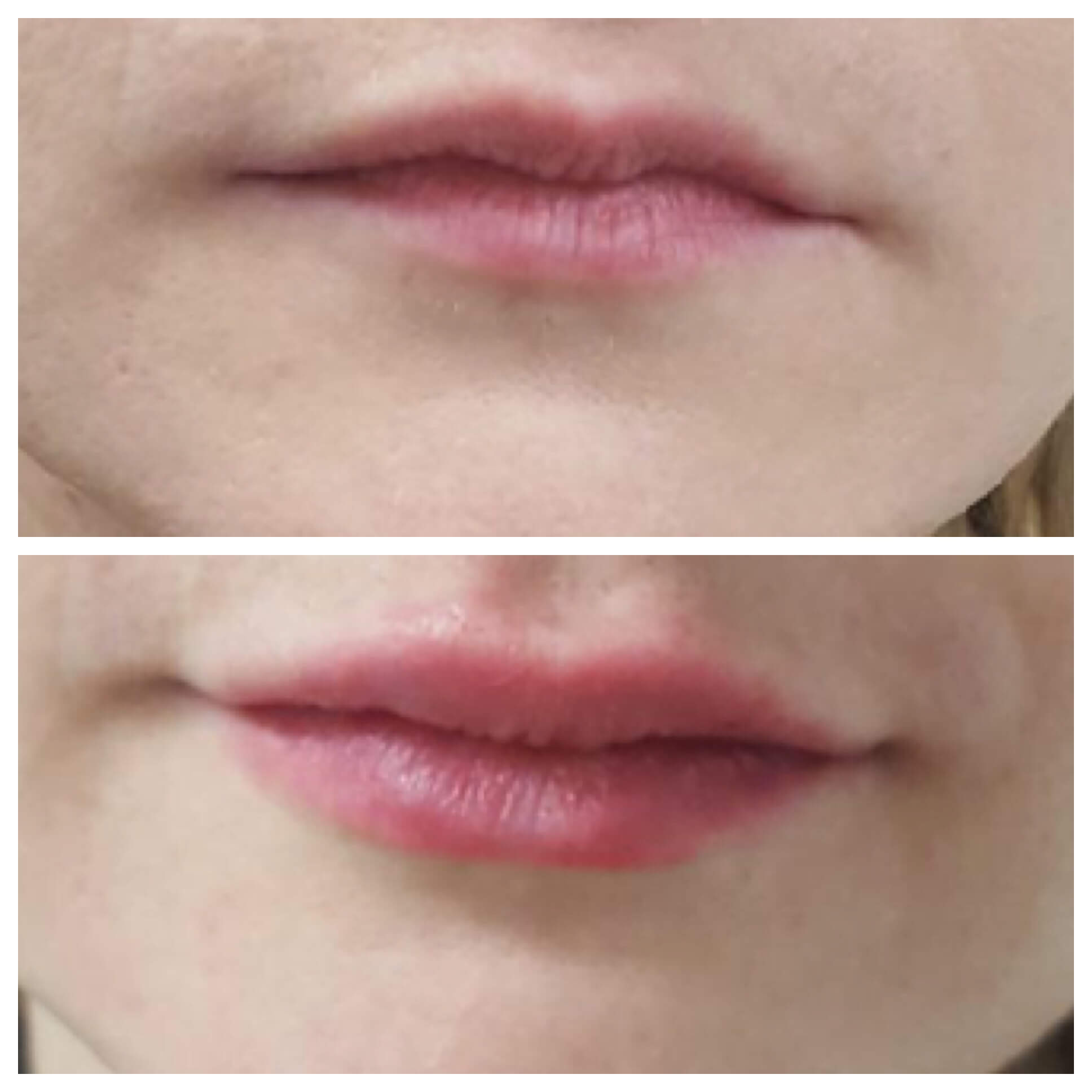 43 EASY TUTORIAL HOW TO MASSAGE LIP FILLERS EBOOK PDF