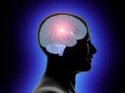 図:脳卒中後ウツ