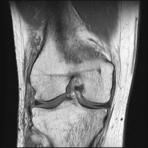 MRI_Knee_Arthroscopy_Placebo