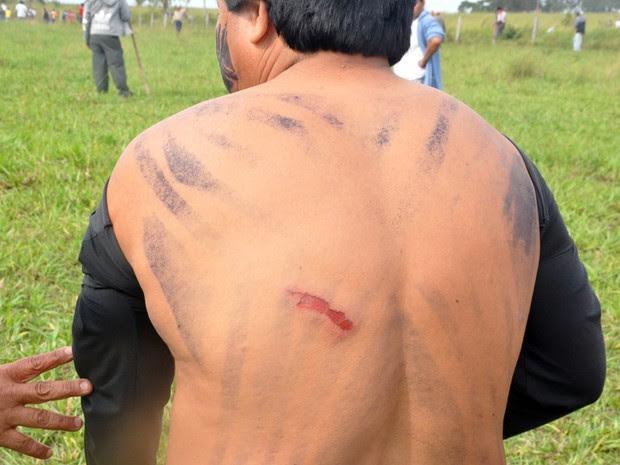 Cacique mostra ferimento nas costas após confronto com policiais (Foto: Tatiane Queiroz/G1 MS)