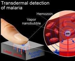 Nanotecnologia usar laser para detectar malária pela pele
