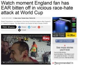 Página do Sunday People na internet mostra vídeo com torcedor sem parte da orelha (Foto: Reprodução)