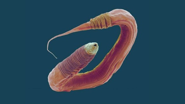 Chỉnh sửa gen giúp các nhà khoa học tăng 500% tuổi thọ của giun, tương đương 400 năm ở con người - Ảnh 1.