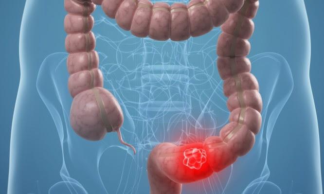 Αποτέλεσμα εικόνας για Καρκίνος παχέος εντέρου