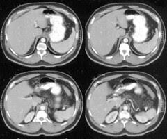 Contoh Gambar CT Scan Bhg Abdomen