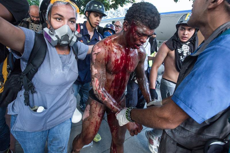 Resultado de imagen para Derecha Fascista Venezolana quema vivo a un Joven en Altamira.