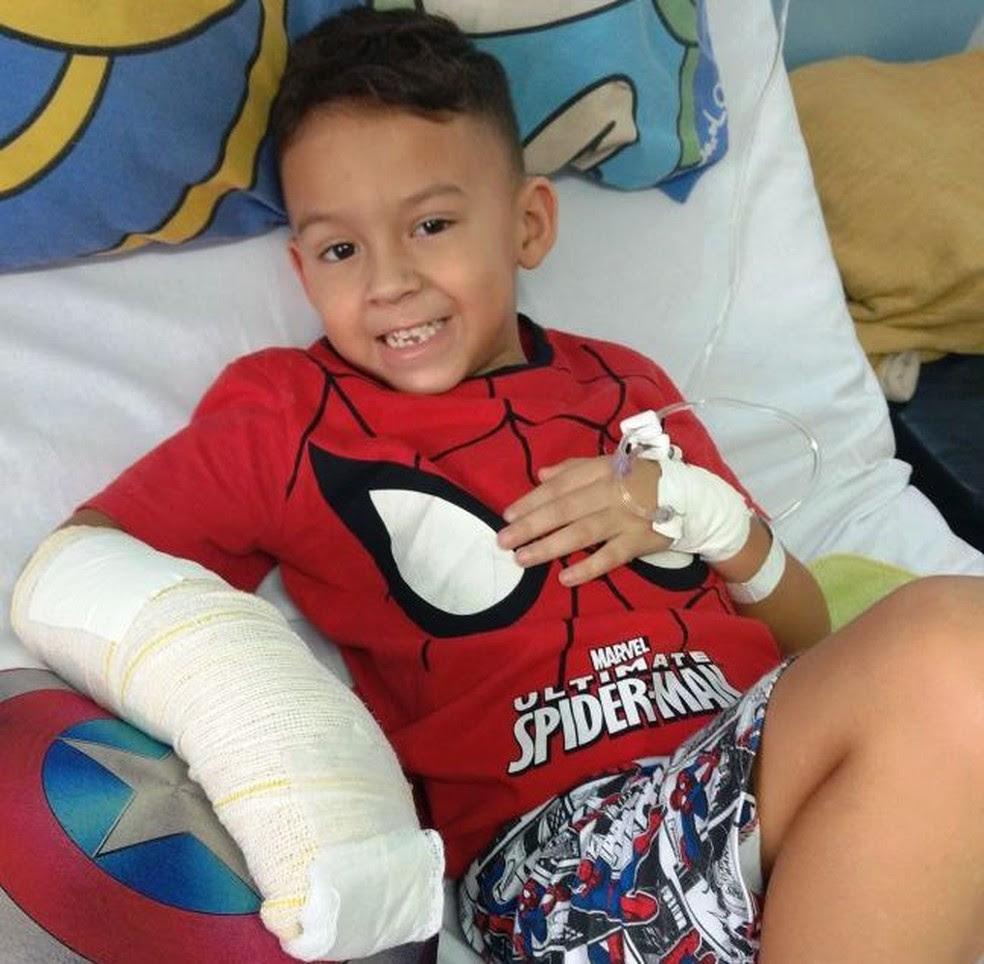 Caio, de 5 anos, teve dois dedos esmagados após queda de mesa (Foto: Arquivo Pessoal)