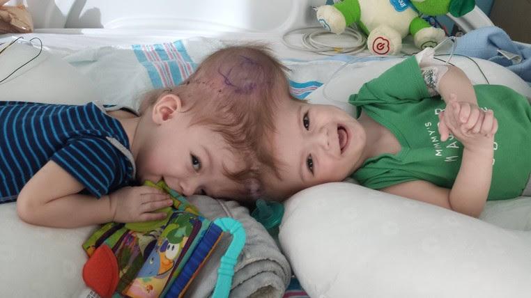 Caso de gêmeos ligados pela cabeça é ainda mais raro (Foto: Nicole McDonald/Reprodução/Facebook)