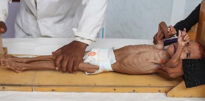 Más de 300 niños muertos en Yemen, las cifras de la vergüenza internacional