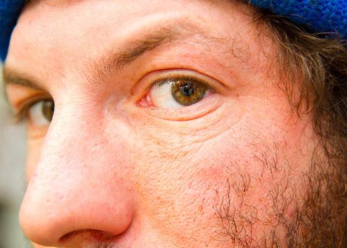 Eyes XV