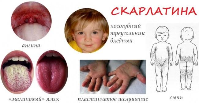 Краткий путеводитель по детским инфекциям