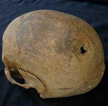 Cráneo de la mujer del siglo XIII.  B.L.M.
