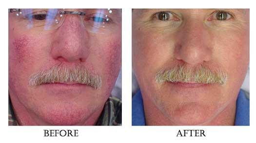 Laser Treatments - www.regalskinandlaser.com