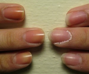 Yellow Nails - Is There a Basecoat that Prevents Staining ...