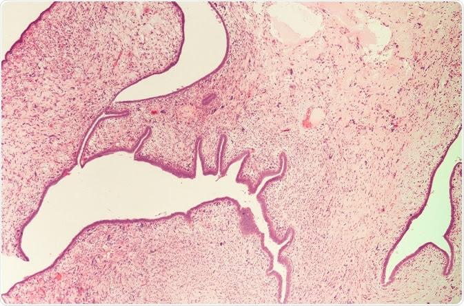 Round Corners and Add Border:  ALT:  Caption:  Photomicrograph (microscopic image) from breast mastectomy specimen showing a malignant phyllodes tumor (cystosarcoma phylodes). Image Credit: David Litman / Shutterstock Save & Insert