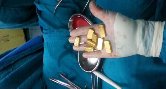 Хирурги нашли в животе бизнесмена клад бизнесмен, желудок, жесть, золото, клад, хирурги