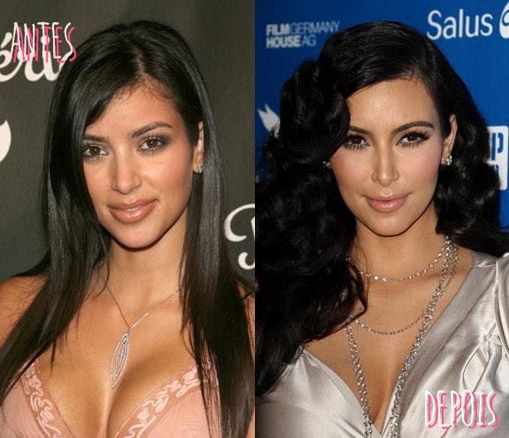 famosas-que-fizeram-rinoplastia-kim-kardashian