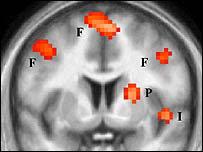 Actividad del odio en el cerebro (IMAGEN: UCL)