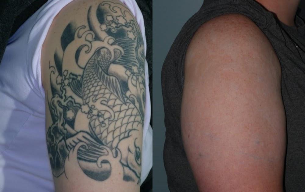Picosure tattoo removal near me best tattoo removal for Tattoo laser removal near me