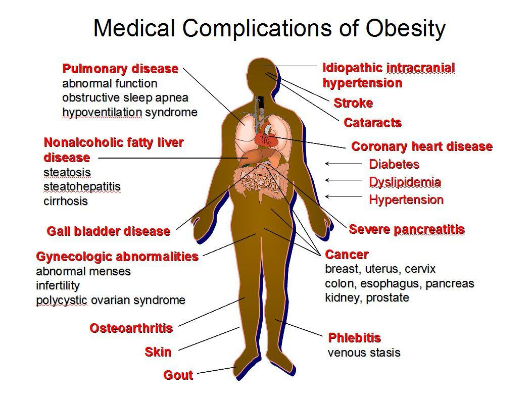 How to Win The Fight Against Obesity? - The Right Way To Do It!
