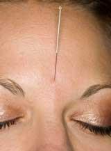 Acupuncture CEU Online Education.