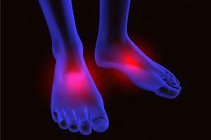 pés neuropatia