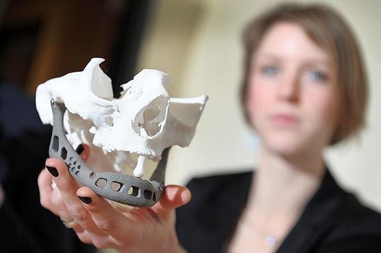 A médica Ingeborg van Kroonenburgh exibe a mandíbula artificial durante entrevista à imprensa na Bélgica
